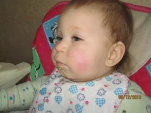 У ребенка после сна красные щеки