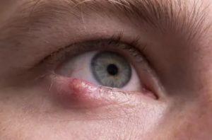 Можно ли застудить глаз