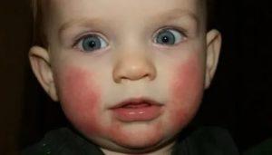 У ребенка насморк и красные щеки