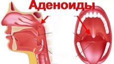 Где находятся аденоиды у человека