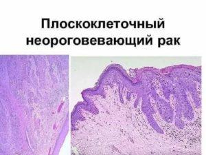 Плоскоклеточный неороговевающий рак легкого