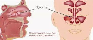 Полипозный полисинусит
