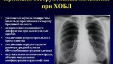 Рентген признаки бронхита