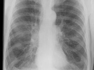 Может ли рентген не показать пневмонию