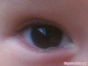 В глазах собирается белая слизь