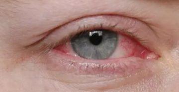 Туберкулез глаз симптомы первые признаки