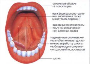 Как лечить воспаление слизистой полости рта