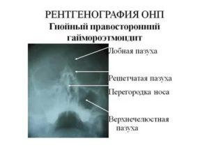 Рентген онп что это