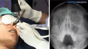 Операция на гайморовой пазухе последствия