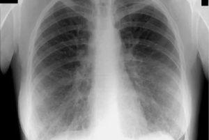 Выявляет ли флюорография рак легких