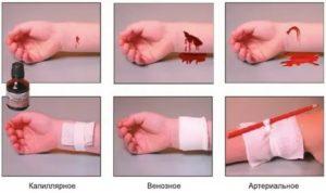 Как остановить кровь из вены на запястье
