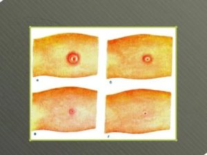 Как выглядит манту при туберкулезе фото