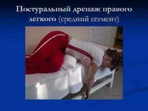 Дренаж легких при пневмонии