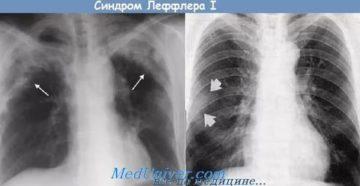 Эозинофильные инфильтраты в легких