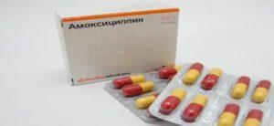 Азитромицин при лимфадените