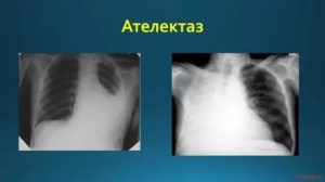 Ателектаз легкого рентгенограмма