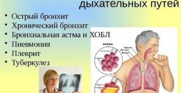 Заболевания нижних дыхательных путей