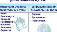 Заболевание верхних дыхательных путей симптомы