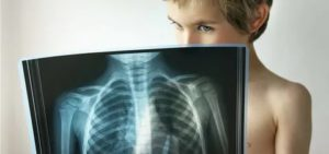 Заболевания легких у детей