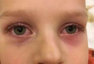 У ребёнка красные глаза и чешутся