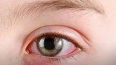 Глаз покраснел и гноится чем лечить