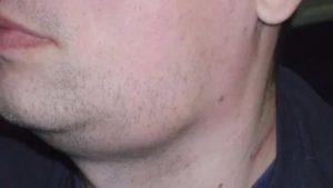 Воспаление подчелюстных лимфоузлов фото