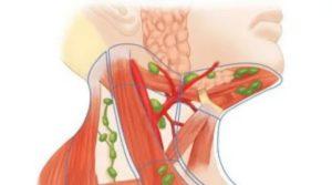 Воспаление подъязычного лимфоузла
