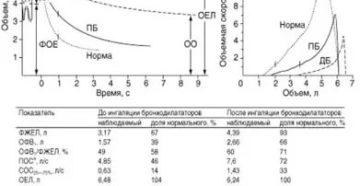 Спирограмма при бронхиальной астме