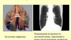 Буллезная болезнь легких лечение