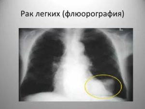 Виден ли рак легких на флюорографии