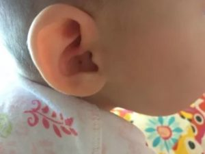 Ребенок 6 месяцев чешет ухо