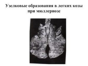 Узелковые образования в легких