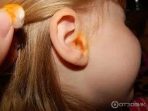 Вытекла сера из уха у ребенка