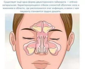 Отечно катаральный гайморит
