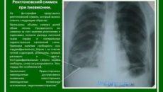 Описание пневмонии на рентгене