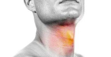 Чем лечить обожженное горло