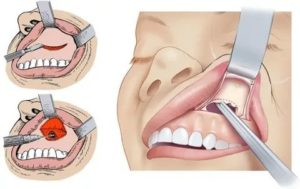 Микрогайморотомия ход операции