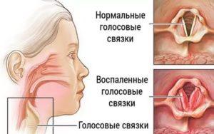 Врач который лечит голосовые связки как называется