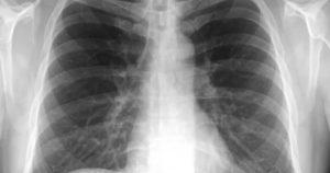 Рентгенография огк что это