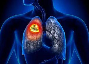 Лечится ли рак легких на ранней стадии