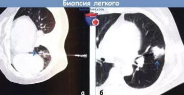 Биопсия легкого последствия