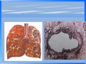Фиброзно кавернозный туберкулез легких заразен или нет