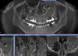 Инородное тело в гайморовой пазухе операция
