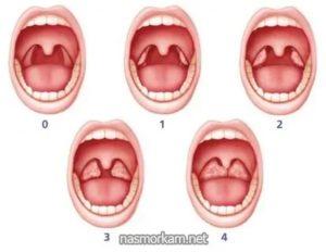 Рыхлые миндалины у ребенка лечение