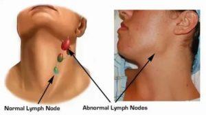 Лимфоузлы угла нижней челюсти увеличены