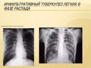 Инфильтративный туберкулёз в фазе распада
