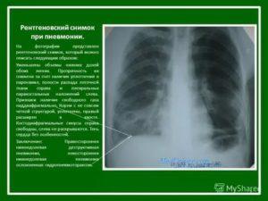 Рентген контроль при пневмонии