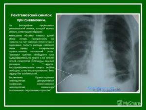 Рентген снимки легких с описанием
