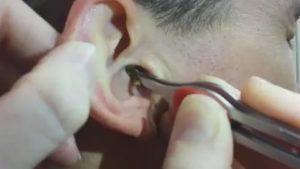 Сухая сера в ушах у ребенка