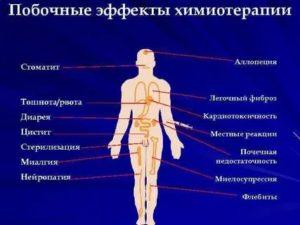 Побочные эффекты химиотерапии в онкологии